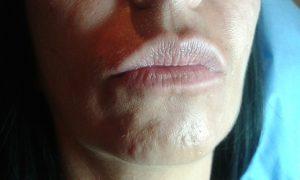 usta przed zabiegiem wypełniania kwasem