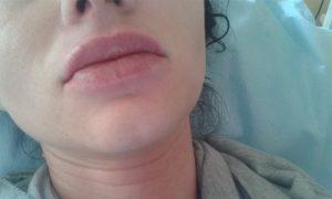 usta po wypałnianiu kwasem hialuronowym 2