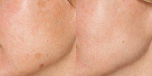 dermatolog-efekt