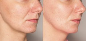 dermatolog-efekt2